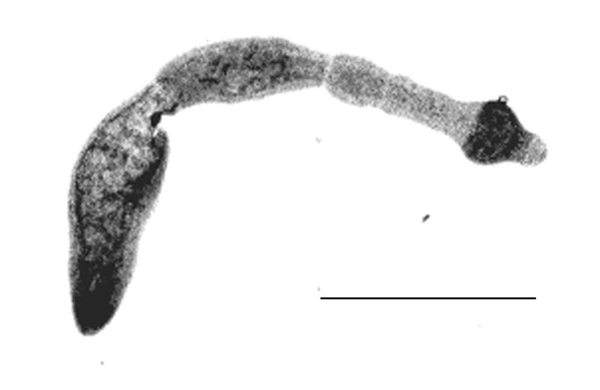 Echinococcus_multilocularis